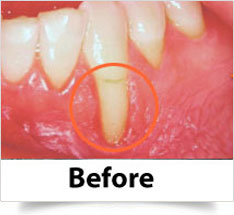 gum-surgery-2