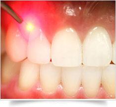gum-surgery-4