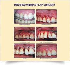 gum-surgery-5