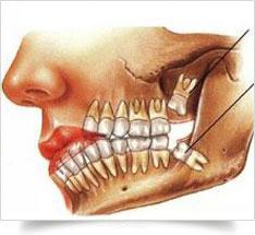 oral-surgery2